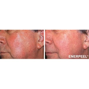enerpeel_ma_before_after (w300_h300_q85_u_p)