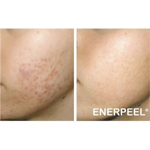 enerpeel_sa_before_after (w300_h300_q85_u_p)